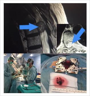 Resección tumor dorsal